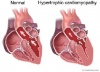 Sudden Cardiac Arrest & Genetic Disorders